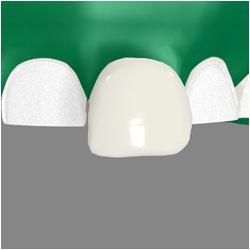 porcelain veneers for teeth with a Timonium dentist Towson MD
