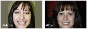 before-after6