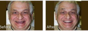 before-after9