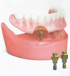 permanent dentures with a Timonium dentist Towson MD and Pikesville