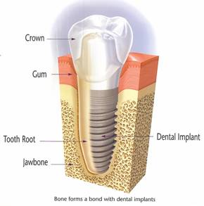 tooth implant in Timonium and Pikesville